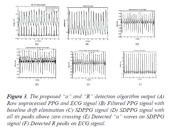 Statistical analysis of pulse rate variability quantified through