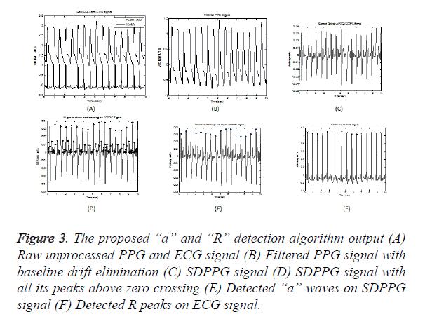 biomedres-ECG-signal