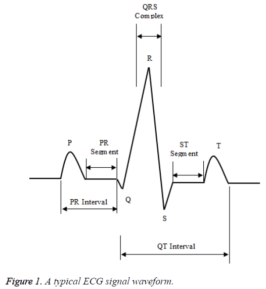 biomedres-ECG-signal-waveform