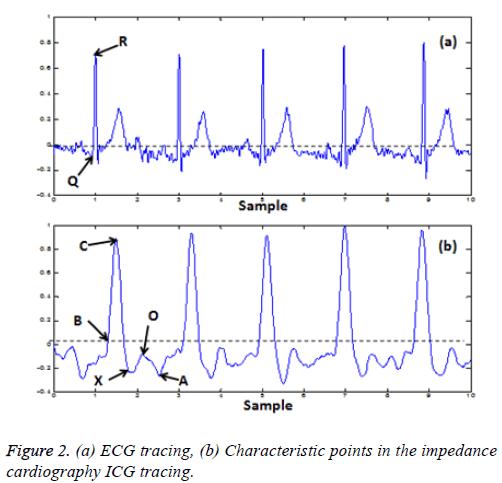 biomedres-ECG-tracing