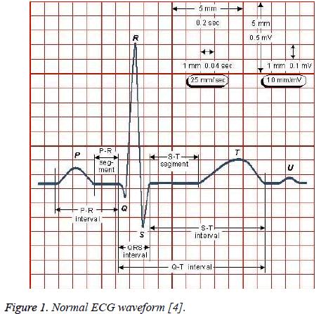 biomedres-ECG-waveform