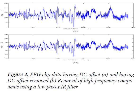 biomedres-EEG-clip-data
