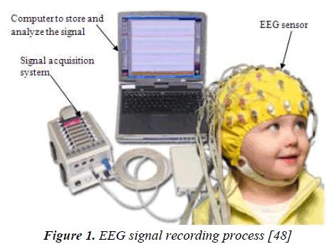 biomedres-EEG-signal-recording