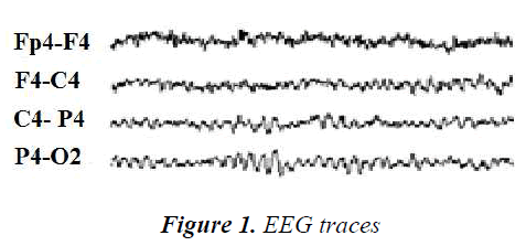 biomedres-EEG-traces