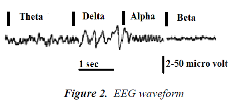 biomedres-EEG-waveform