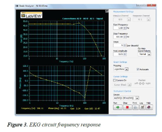 biomedres-EKG-circuit-frequency