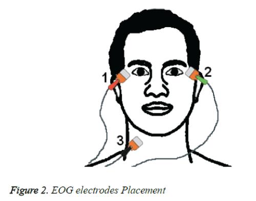 biomedres-EOG-electrodes