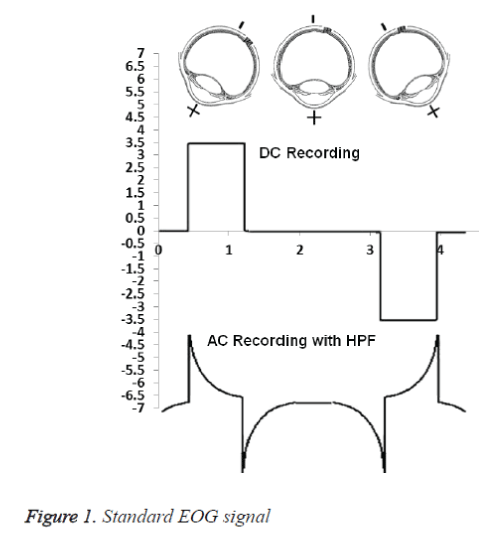 biomedres-EOG-signal