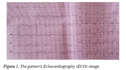 biomedres-Echocardiography
