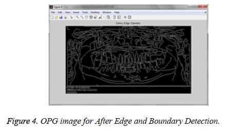 biomedres-Edge-Boundary-Detection