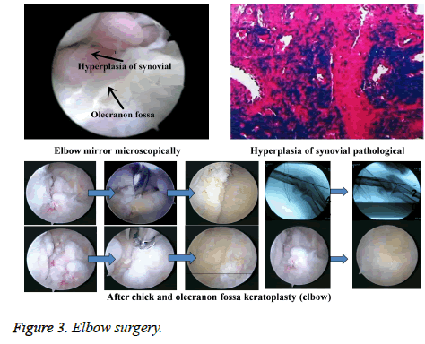 biomedres-Elbow-surgery