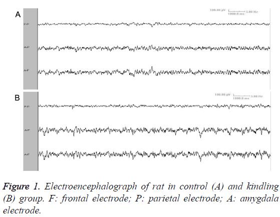 biomedres-Electroencephalograph-rat