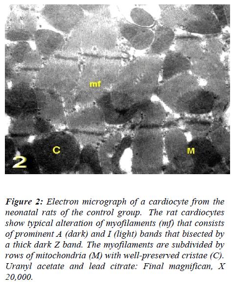 biomedres-Electron-micrograph-Uranyl