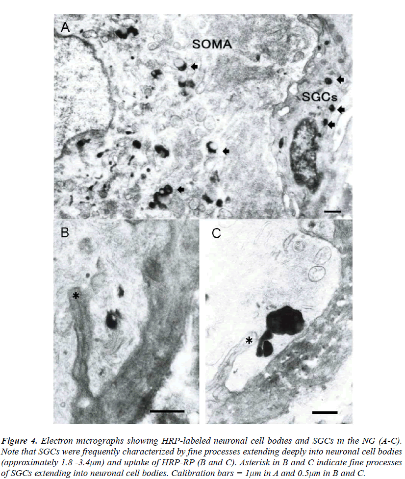 biomedres-Electron-micrographs-showing-HRP-labeled