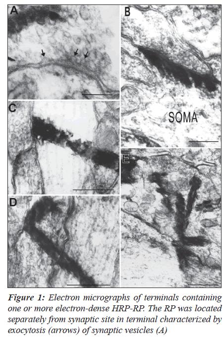 biomedres-Electron-micrographs-terminals