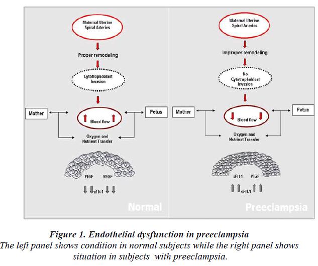 biomedres-Endothelial-dysfunction-preeclampsia