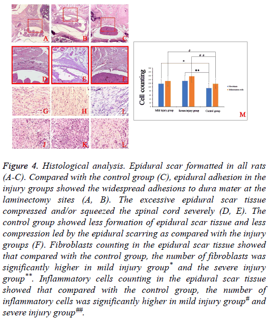 biomedres-Epidural-scar