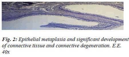 biomedres-Epithelial-metaplasia