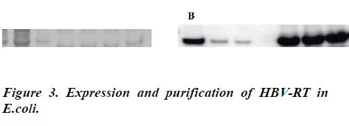 biomedres-Expression-purification-HBV-RT