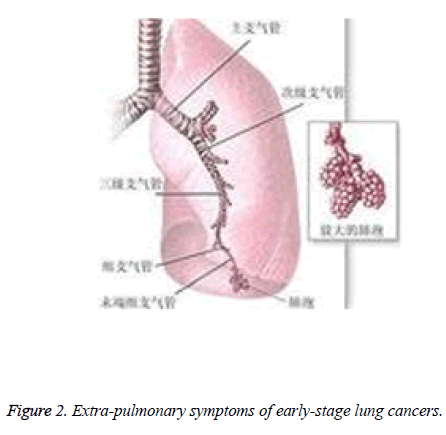 biomedres-Extra-pulmonary