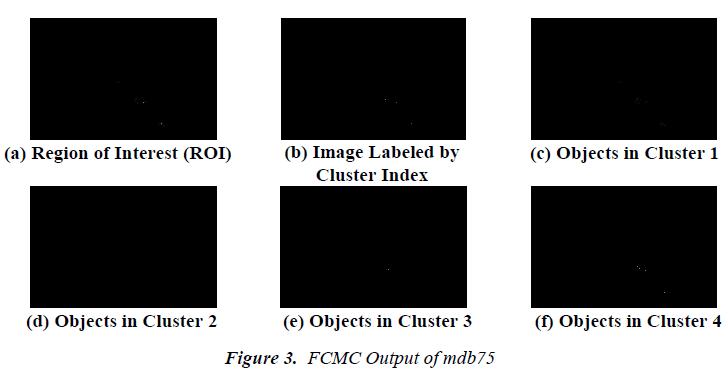 biomedres-FCMC-Output-mdb75