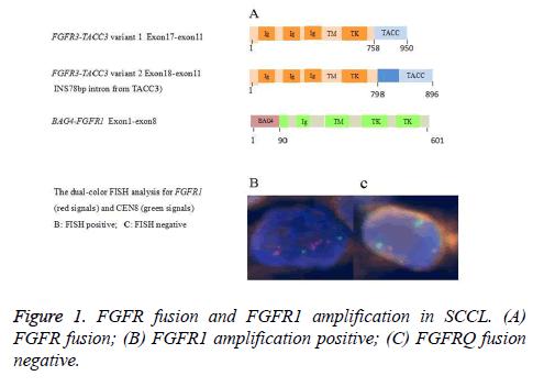 biomedres-FGFR-fusion