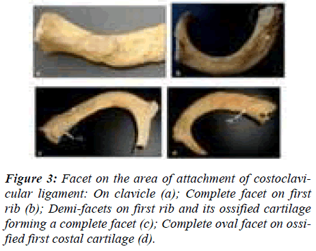 biomedres-Facet-area-attachment-ligament