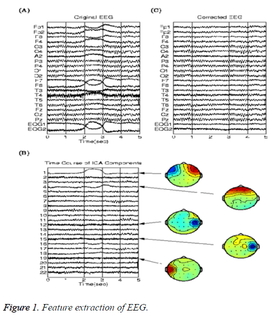 biomedres-Feature-extraction-EEG