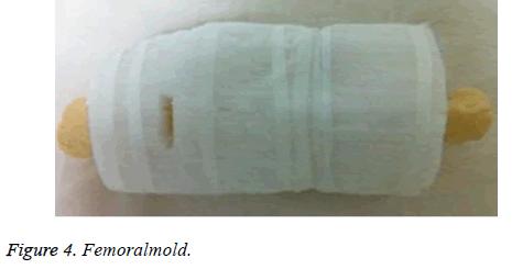 biomedres-Femoralmold