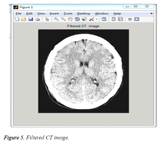 biomedres-Filtered-CT-image