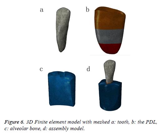 biomedres-Finite-element