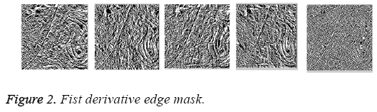 biomedres-Fist-derivative-edge-mask