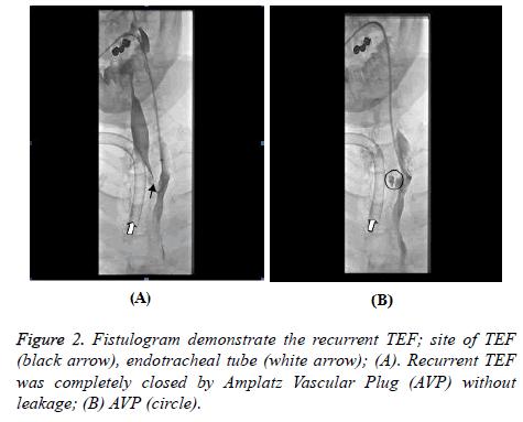 biomedres-Fistulogram-demonstrate