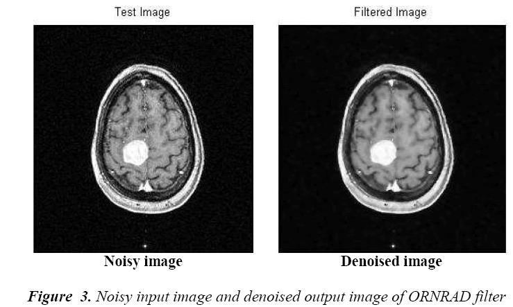 biomedres-Flow-graph-brain-tumor