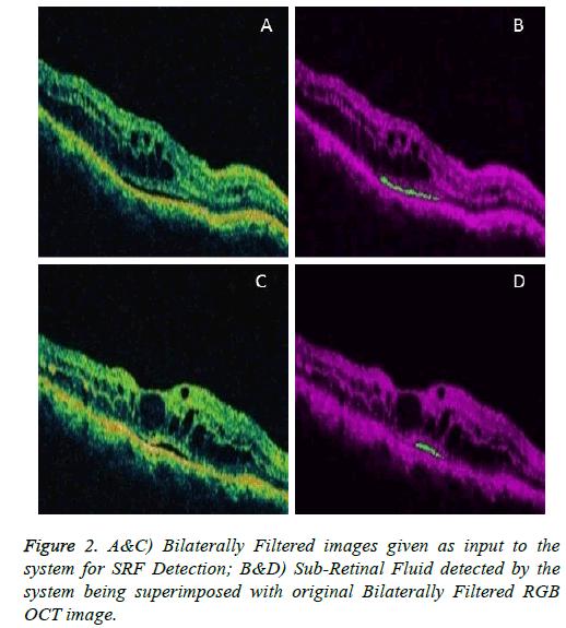 biomedres-Retinal-Fluid