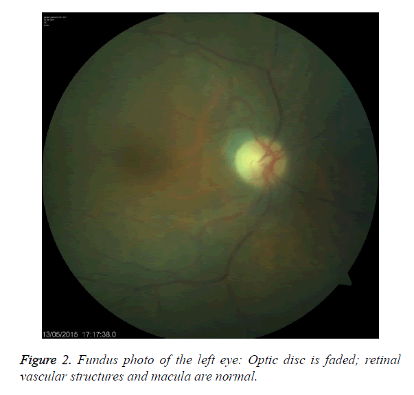 biomedres-Fundus-photo