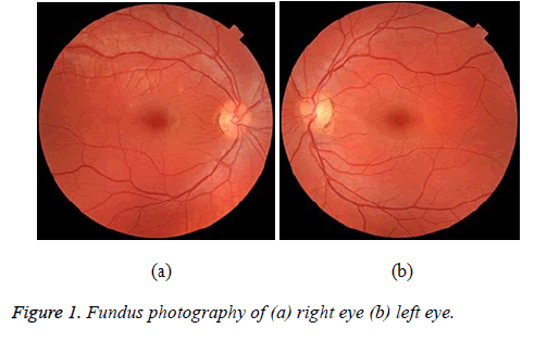 biomedres-Fundus-photography