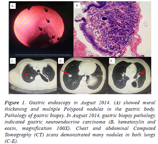 biomedres-Gastric-endoscopy