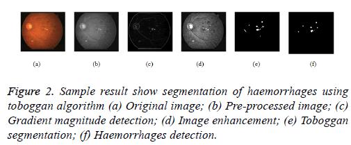 biomedres-Haemorrhages-segmentation