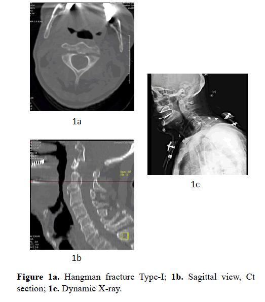 biomedres-Hangman-fracture