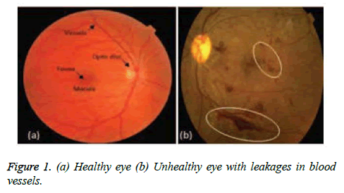 biomedres-Healthy-eye