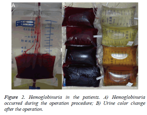 biomedres-Hemoglobinuria