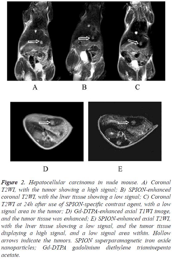 biomedres-Hepatocellular-carcinoma-nude