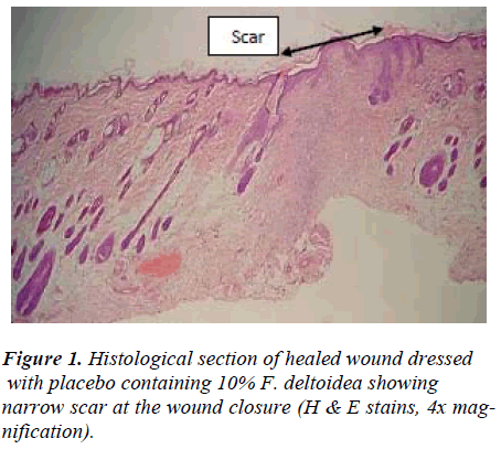 biomedres-Histological-wound-dressed-placebo
