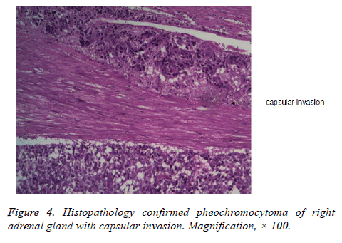 biomedres-Histopathology-confirmed