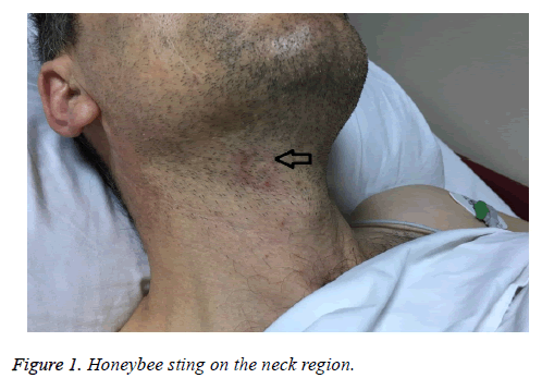 biomedres-Honeybee-sting