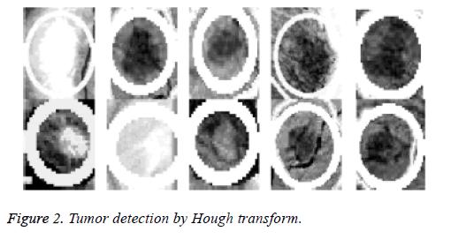 biomedres-Hough-transform