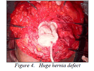biomedres-Huge-hernia