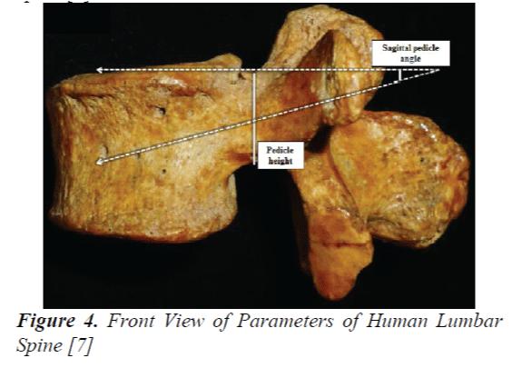 biomedres-Human-Lumbar-Spine