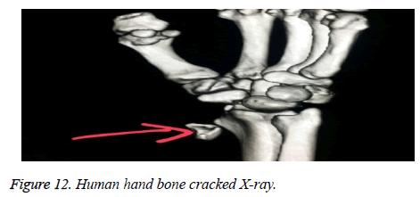 biomedres-Human-hand-bone